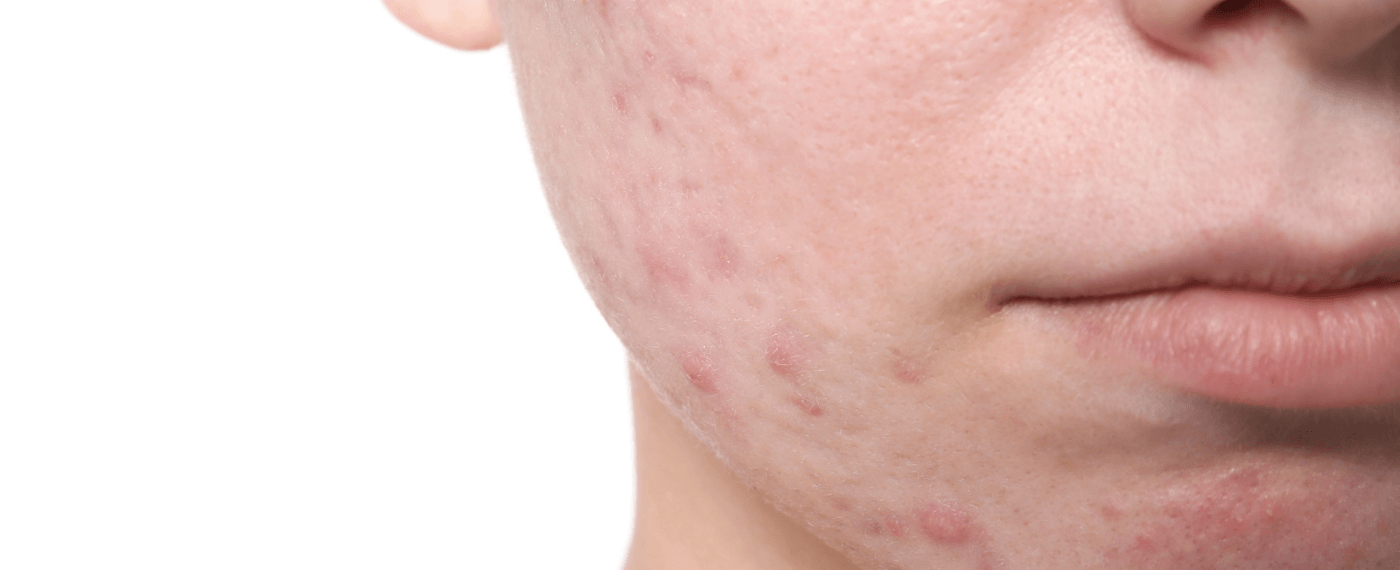 Young boy's cheek with acne marks