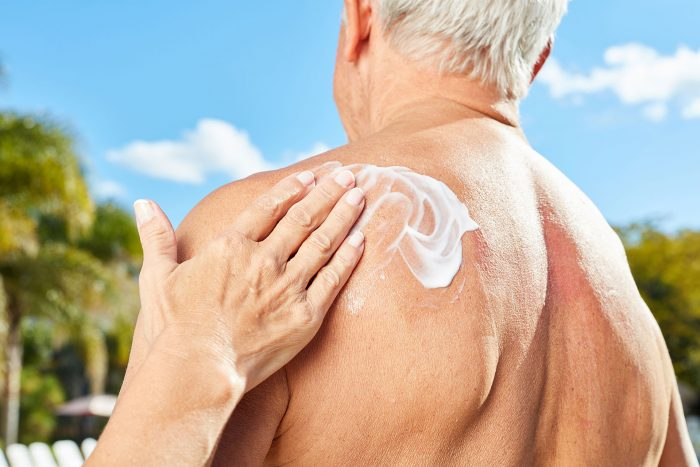 Man applying sunscreen to benefit from wearing sunscreen everyday