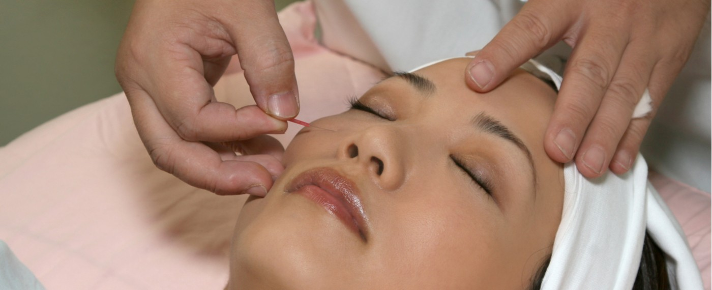 woman receiving acupuncture to help with pms symptoms